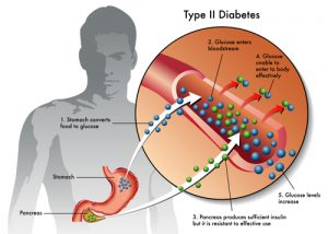 if we don't limit our sugar intake we could develop type 2 diabetes